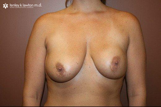 Breast Implant Removal & Replacement Newport Beach